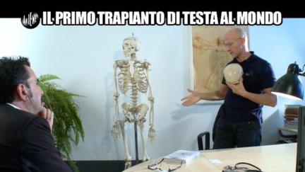 PELAZZA: Il primo trapianto di testa al mondo