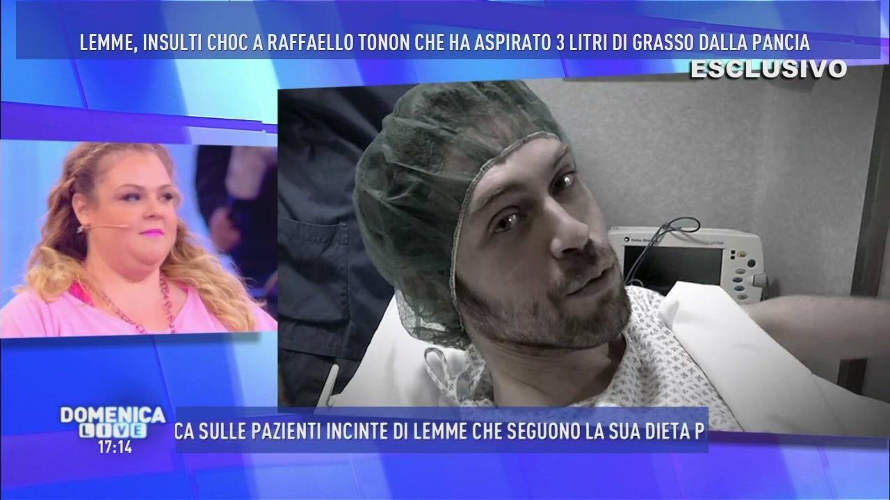 Raffaello Tonon e l'intervento di liposcultura