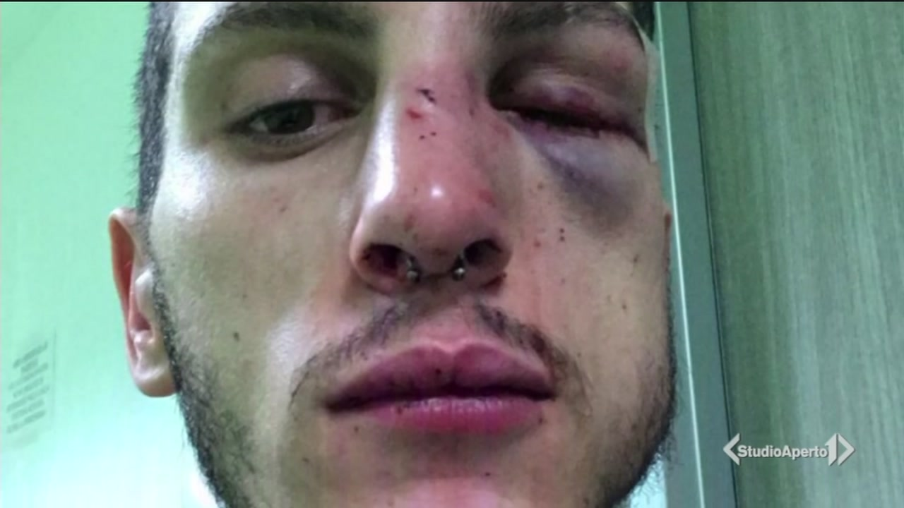 Violenza omofoba del branco contro 2 ragazzi