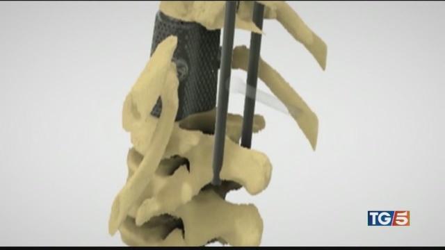 Trapianto di vertebre, Italia prima al mondo